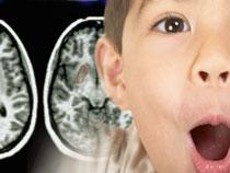 синдром дефицита внимания с гиперактивностью